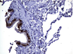 パラフィン包埋したヒト肺組織をanti-MGMT マウスモノクローナル抗体を使って免疫組織化学染色 Clone UMAB56