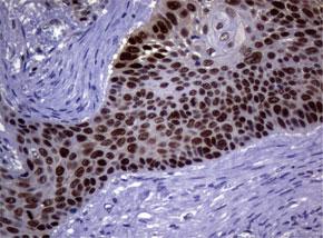 パラフィン包埋したヒト肺組織の細胞腫をanti-MGMT マウスモノクロー ナル抗体を使って免疫組織化学染色 Clone UMAB56