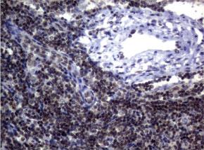 パラフィン包埋したヒトリンパ節組織をanti-MGMT マウスモノクローナ ル抗体を使って免疫組織化学染色 Clone UMAB56