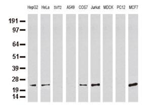 9種の細胞株からの抽出物(35ug)をanti-MGMT モノクローナル抗体 を使ってウェスタンブロット解析 Clone UMAB56