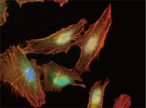 HeLa 細胞をMGMT マウスモノクローナル抗体を用いて免疫蛍光染色(緑 色)。アクチン線維はTRITC- ファロイジン(赤色)ラベルし、核はDAPI 染色(青 色)し、3色を重ね合わせた。 Clone UMAB56