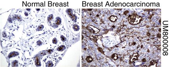 パラフィン包埋したヒト正常乳房組織と乳腺がん組織をanti-MUC1マウスモノクローナル抗体を使って免疫組織化学染色(UM800008)