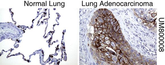 パラフィン包埋したヒト正常肺組織と肺腺がん組織をanti-MUC1マウスモノクローナル抗体を使って免疫組織化学染色(UM800008)
