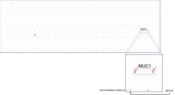 ORG 社のoverexpression protein microarray chip をUltraMAB anti-MUC1 マウスモノクローナル抗体を用いて免疫染色(Clone UMAB37)。陽性反応を示 すタンパク質は拡大したサブアレイ内に赤色矢印を用いてハイライトした。サ ブアレイ内に存在する全てのポジティブコントロールも明確にするためラベル した。本データよりUltraMAB anti-MUC1(Clone UMAB37)がOriGene protein microarray chip 上のMUC1 抗原を非常に特異的に認識することがわかる。