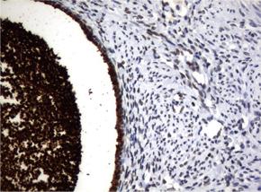 パラフィン包埋したヒト子宮内膜組織をanti-WFDC2 マウスモノクローナル抗体を使って免疫組織化学染色 :Clone UMAB87