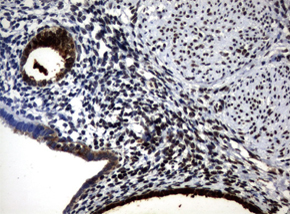 パラフィン包埋したヒト子宮内膜組織をanti-WFDC2 マウスモノクローナル抗体を使って免疫組織化学染色 :Clone UMAB88