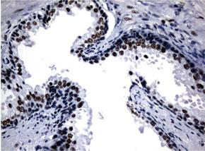 パラフィン包埋したヒト前立腺組織をanti-NBN マウスモノクローナル抗体を使って免疫組織化学染色 Clone UMAB100