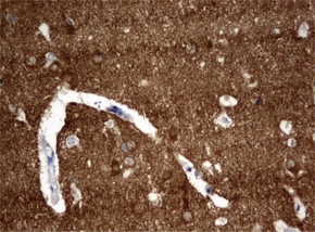 ヒト成体脳組織をanti-VSNL1 マウスモノクローナル抗体を使って免疫組織化学染色
