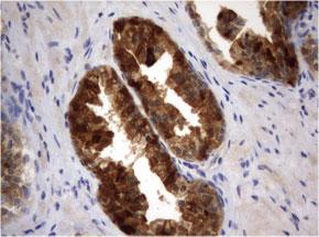 ヒト前立腺組織の細胞腫をanti-MSMB マウスモノク ローナル抗体を使って免疫組織化学染色