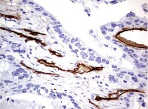 パラフィン包埋したヒト結腸組織の腺がんをanti-MCAM マウスモノク ローナル抗体を使って免疫組織化学染色 :Clone UMAB154