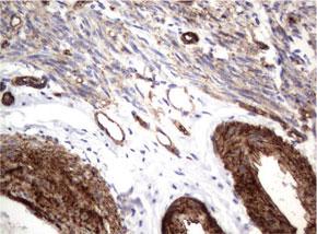 パラフィン包埋したヒト子宮内膜腺組織の細胞腫をanti-MCAM マウスモ ノクローナル抗体を使って免疫組織化学染色 :UMAB154