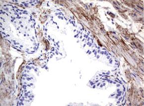 パラフィン包埋したヒト前立腺組織の細胞腫をanti-MCAM マウスモノクローナル抗体を使って免疫組織化学染色 :Clone UMAB154