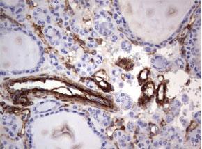パラフィン包埋したヒト甲状腺組織の細胞腫をanti-MCAM マウスモノクローナル抗体を使って免疫組織化学染色 :Clone UMAB155