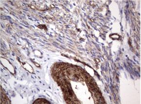 パラフィン包埋したヒト子宮内膜腺組織の細胞腫をanti-MCAM マウスモ ノクローナル抗体を使って免疫組織化学染色 :UMAB155