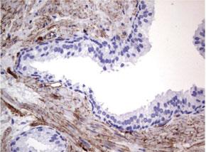 パラフィン包埋したヒト前立腺組織の細胞腫をanti-MCAM マウスモノクローナル抗体を使って免疫組織化学染色 :Clone UMAB155