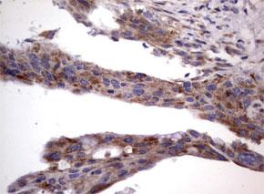 パラフィン包埋したヒト膵臓組織の細胞腫をanti-MRPS7 マウスモノクローナル抗体を使って免疫組織化学染色(UM800053)
