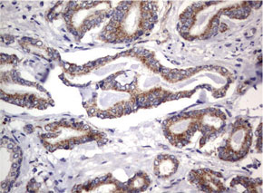 パラフィン包埋したヒト前立腺組織をanti-MRPS7 マウスモノクローナル抗体を使って免疫組織化学染色(UM800053)