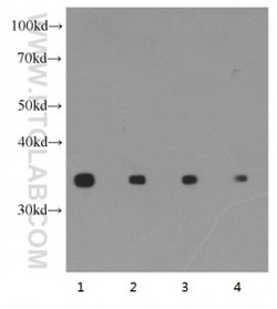 HeLa 細胞ライセートのウェスタンブロット。