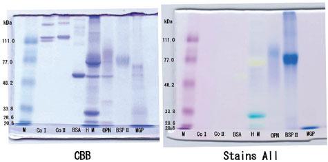 酸性タンパク質の染色例