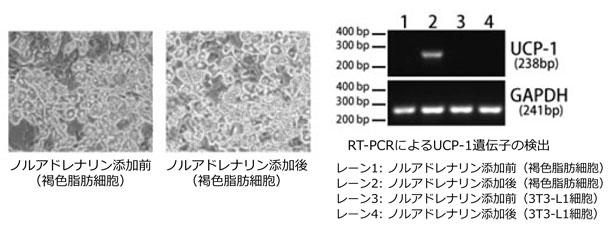 図1 Uncoupling protein-1 (UCP-1) の活性化