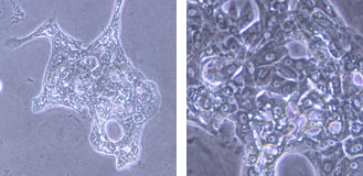 小型肝細胞(右:強拡大)