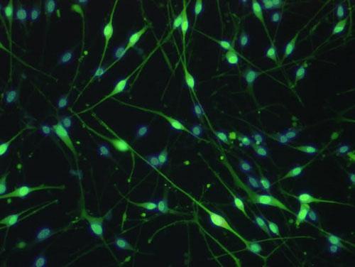 抗S100抗体蛍光染色(緑:S100,青:核染)