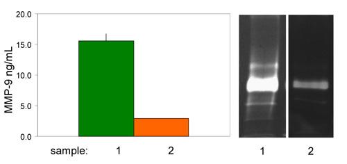 MMP-9 活性定量キット と ザイモグラフィー