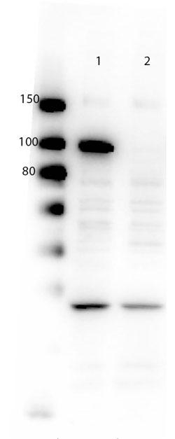 図2 本抗体を用いたウェスタンブロット