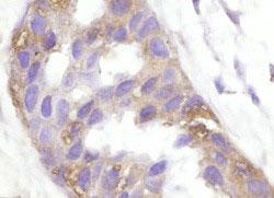 ヒト乳癌のホルマリン固定パラフィン包埋切片