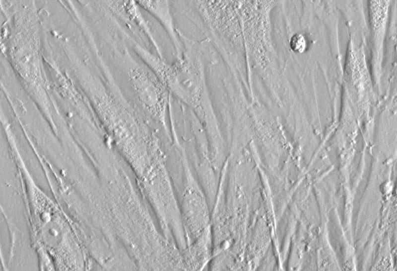 歯根膜線維芽細胞 (HPLF) レリーフコントラスト画像 400×