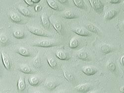 ヒト食道上皮細胞 (品番2700) のレリーフ画像